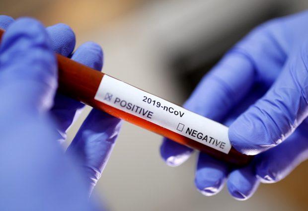 HES: U Gradačcu na koronavirus testirano 537 osoba